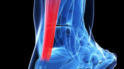 Tendinite Achillea