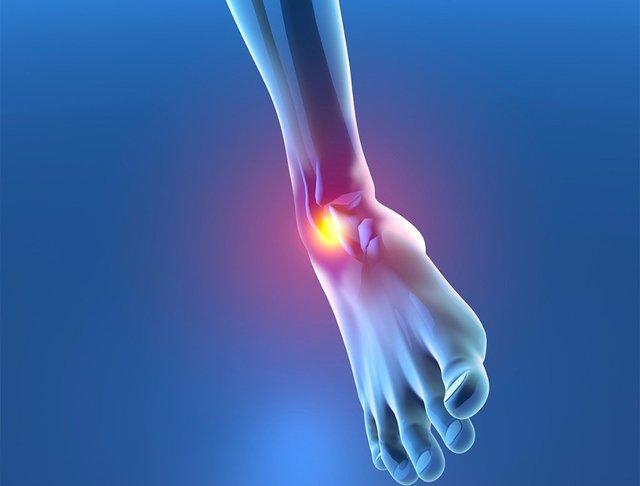 Distorsioni recidivanti – Instabilità di caviglia