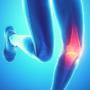 Condropatie (caviglia e ginocchio)